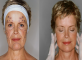 Why a Neck Lift May Be a Good Option for You